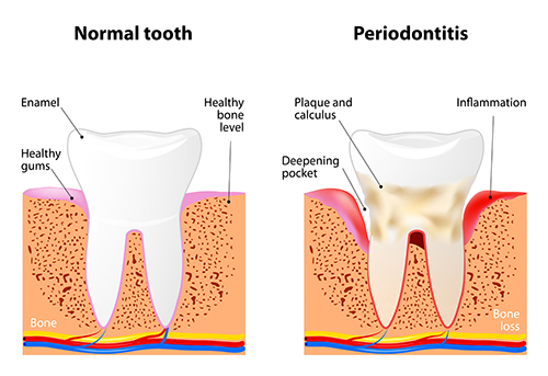 Gum Disease Treatment with Crown Hill Smiles in Seattle, WA